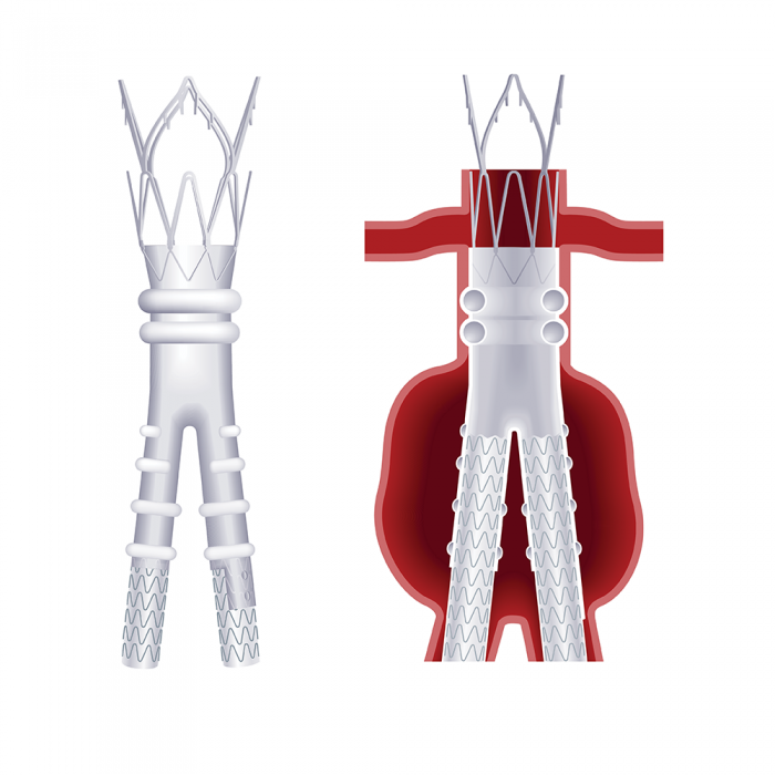 TriVascular — TECHNICAL ILLUSTRATION